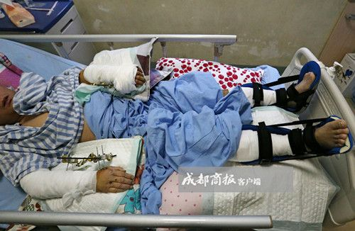 四川:饲养员遭大熊猫疯狂撕咬 脚筋腕骨被咬断(图)