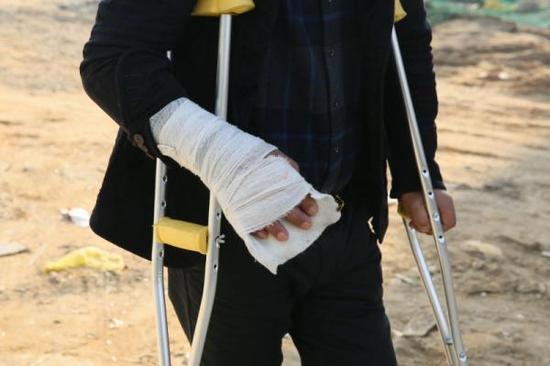 赵家友被打,左下肢外伤,左腓骨多段骨折,右手外伤,右手第4掌骨基底骨折,枕骨骨折。