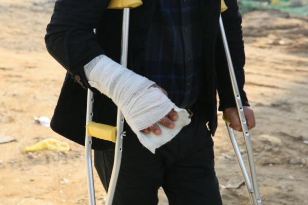 赵家友被打,左下肢外伤,左腓骨多段骨折,右手外伤,右手第4掌骨基底骨折,枕骨骨折。澎湃新闻记者 谢匡时 图