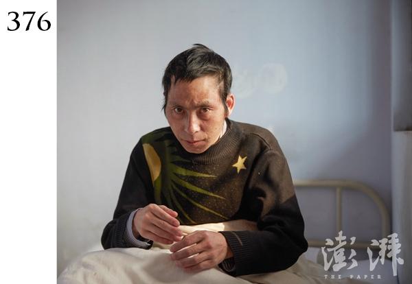 376号病人,男,约40岁。2016年3月18日,由郑州市嵩山路分局警察送至医院。市民报警称在嵩山南路快车道中间躺着一男子,上身赤裸、浑身脏乱,不说话而无法沟通。