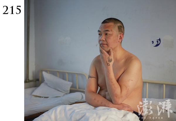 215号病人,男,约40岁。2015年2月21日19时,于郑州经济技术开发区第二街东杨社区一居民楼下被发现,该病人在现场用一废弃机油壶灌水喝。观察其体表,头部及身体有手术愈合后切口。日常表现语无伦次、行为怪异。
