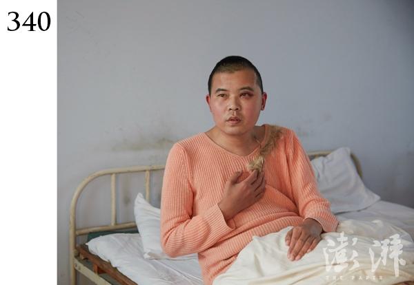 340号病人,男,约30岁。2015年11月24日,该病人在下雪天躺在湖边亭子里,衣服脏乱,并称自己有飞机大炮,要炸了某地。