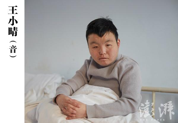 王小晴(音),女,二三十岁。2015年6月8日,由郑州高新区分局民警送到医院,当时该病人躺在大街上,胡言乱语。