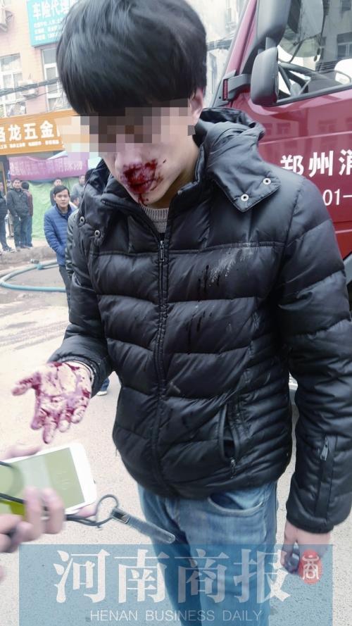 记者被打,口鼻流血不止