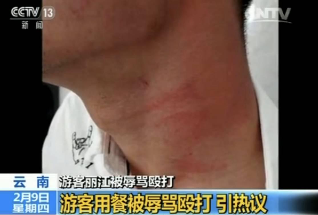 关注 | 游客丽江就餐被辱骂殴打 真相到底是什么?