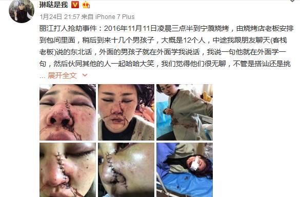 随后,大家还扒出了之前网友的微博爆料,2017年1月24日,网友@琳哒是我称,自己在丽江旅游就餐被打致毁容。