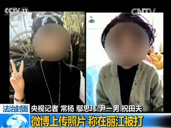 这个遭遇殴打的女孩名叫小琳,在她发布的照片中,左边一张是她出事前的照片,右边一张是出事当天的照片,从两张照片上,我们似乎很难看出这是一个人。究竟是怎样的遭遇让她有如此大的变化呢?事情还要从2016年的10月份开始说起。