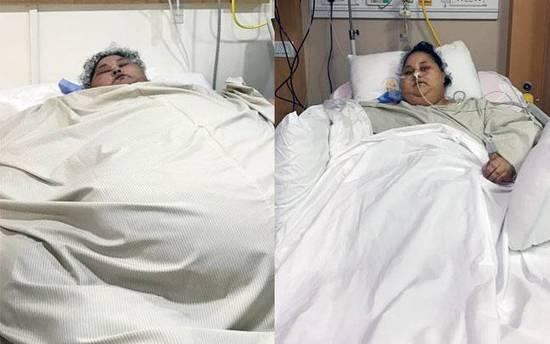 艾提手术前(左)和手术后(右)的照片。