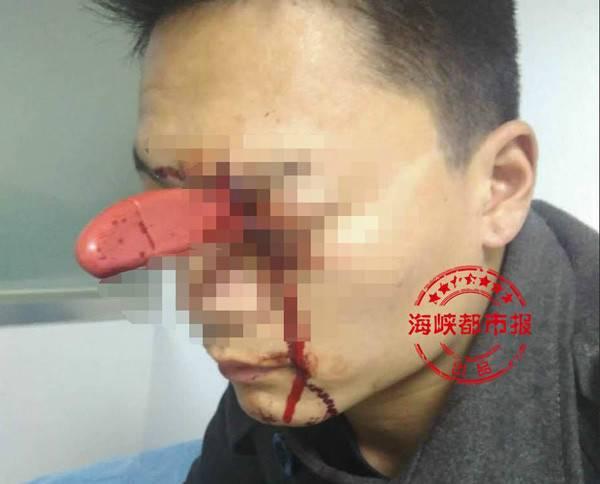 男子眼插水果刀淡定就诊自称跟老婆争执时被捅伤