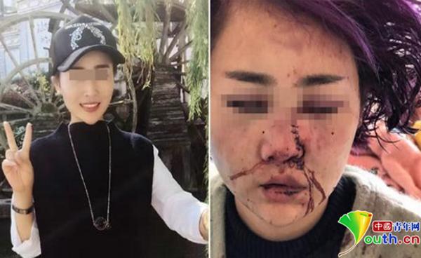 女孩被打毁容前后对比照。