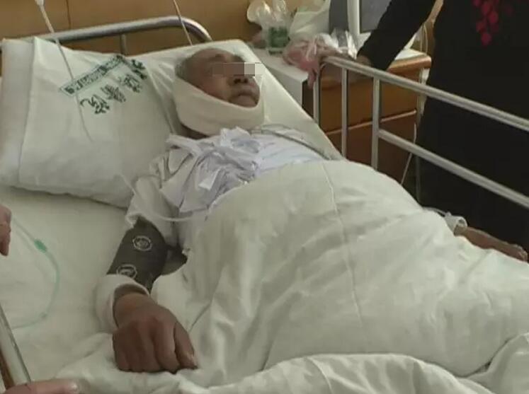 在烟台市北海医院,我们见到了受伤的姜衍贵老人。肋骨断了三根,还插伤了肺,现在下颌骨这里骨折了。