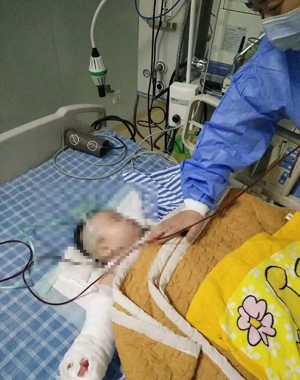 女婴换纱布时被医生剪断小指院方:已处罚涉事医生