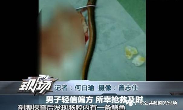 """原来时刘先生自己相信一个民间偏方,说鳝鱼可以解除肠梗阻,他自己就回去试了一下。这么离奇的偏方一听就很不靠谱,""""黄鳝哥""""居然信以为真了。"""