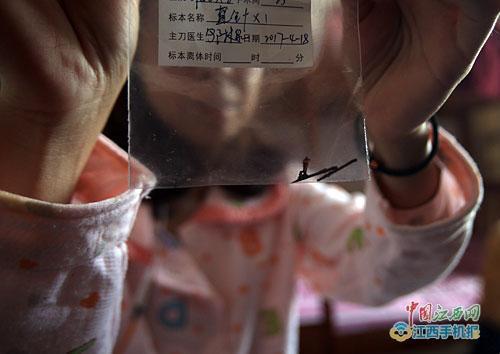 """女子体内""""藏""""缝衣针23年手术取出已锈迹斑斑"""