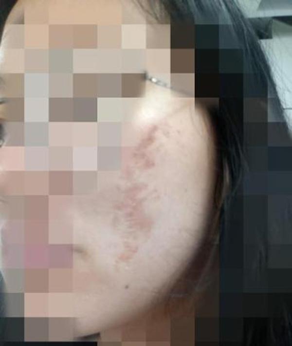 南昌一商场被指拿劣质化妆品搞活动多名学生脸灼伤
