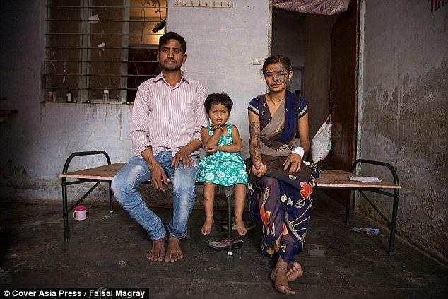 印度女孩被父亲泼硫酸毁容 只因举报爸爸买卖妇女