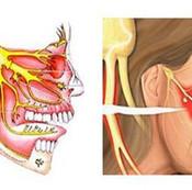 患者咨询:我的三叉神经痛会转移吗?